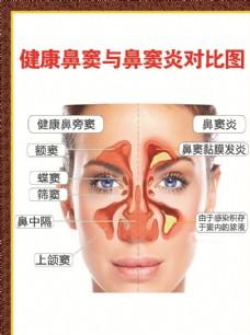 健康鼻窦与鼻窦炎